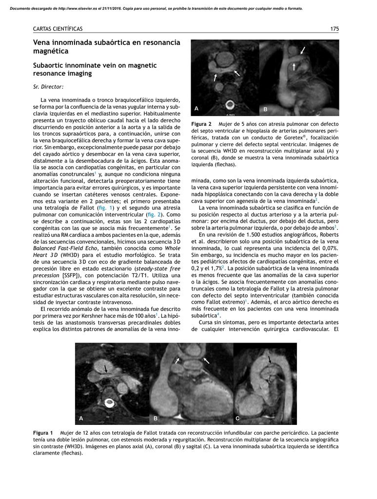Vena innominada subaórtica en resonancia magnética