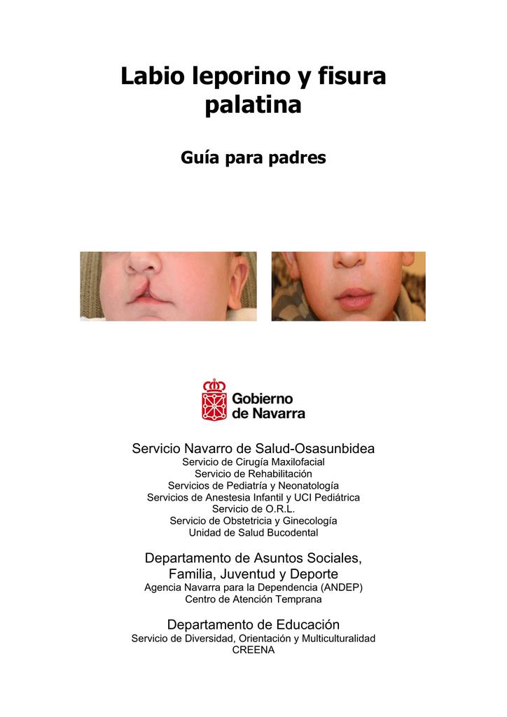 Labio leporino y paladar hendido cuidados de enfermeria pdf