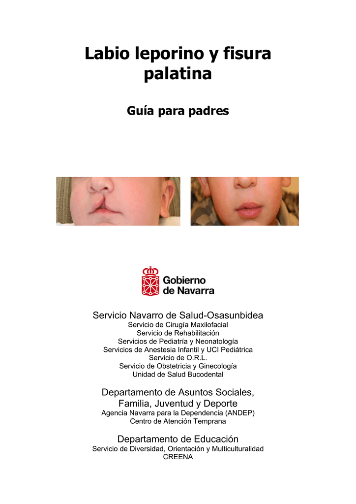 Guía para padres con labio leporino - Gobierno