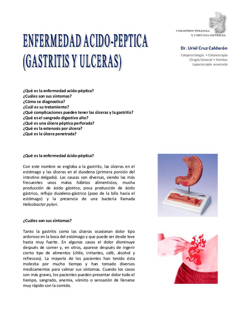 ulcera peptica sintomas diagnostico y tratamiento