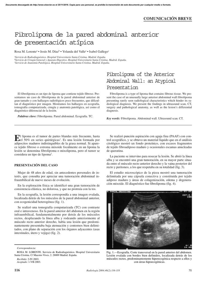 Fibrolipoma de la pared abdominal anterior de presentación atípica