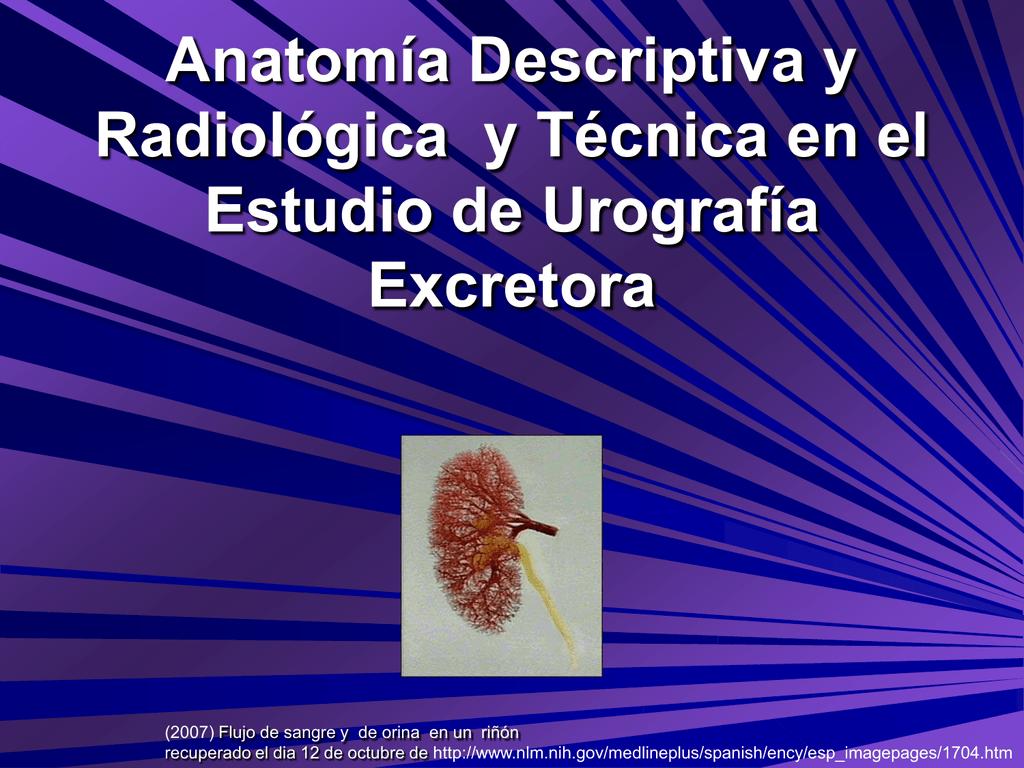 Anatomía Radiológica en el Estudio de Urografía Excretora