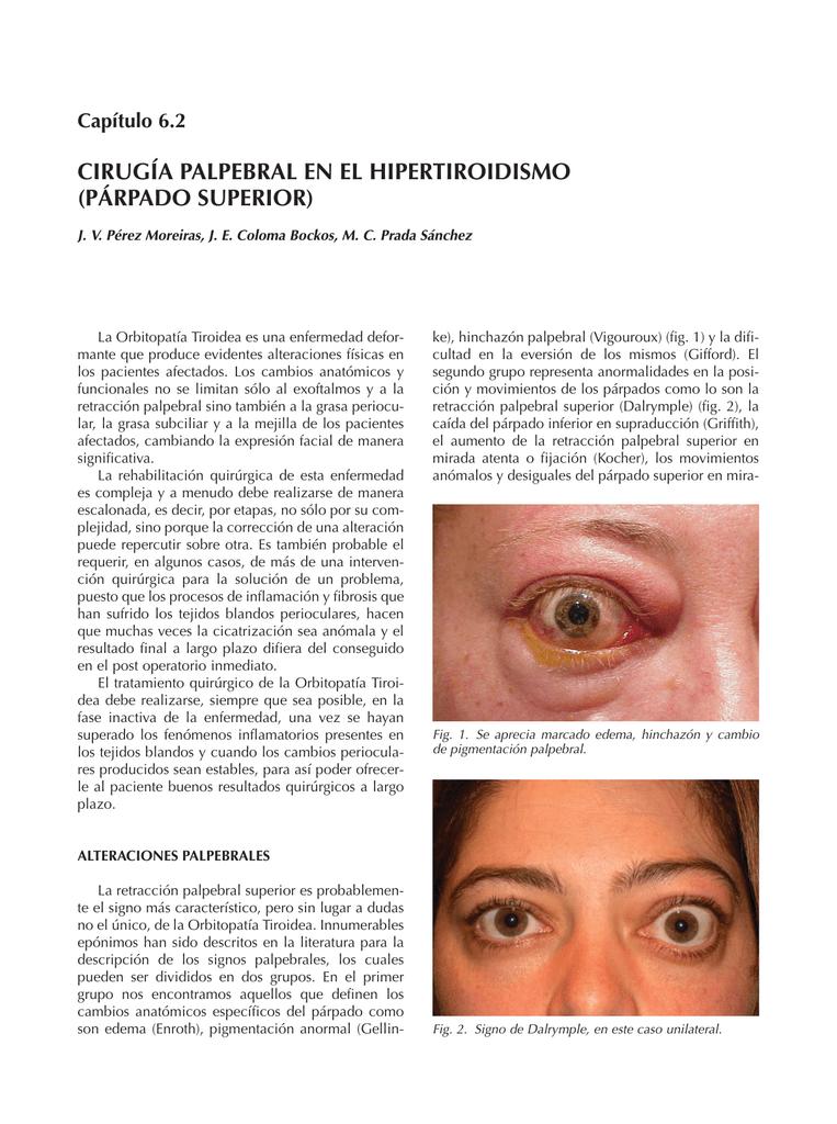 cirugía palpebral en el hipertiroidismo (párpado superior)
