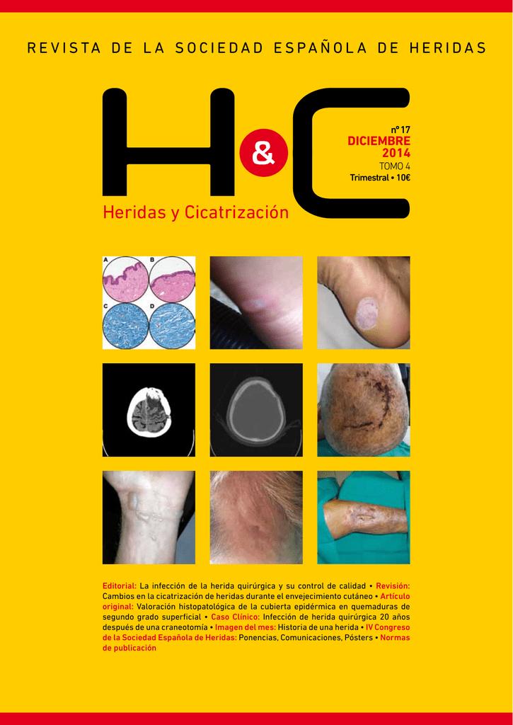 IHC pegatinas 75 años de calidad en Alemania sticker Label