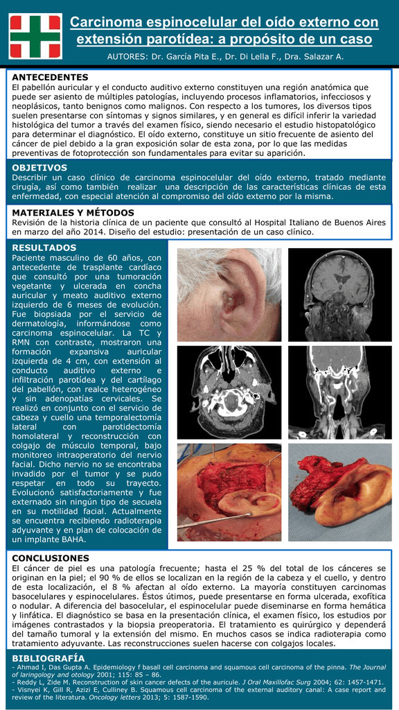 Carcinoma Espinocelular Del Oído Externo Con Extensión