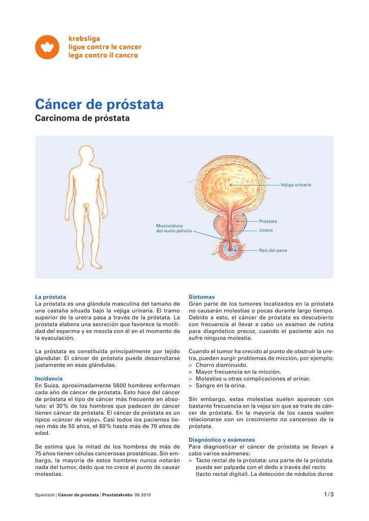 tumores de próstata situada