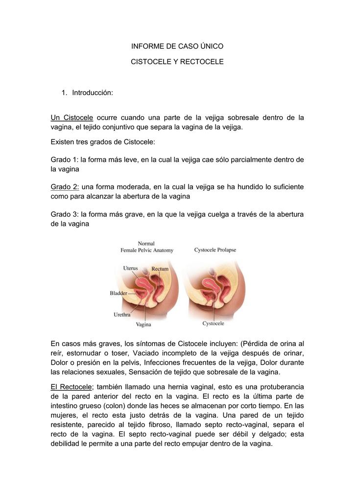 Rectocele sintomas y causas