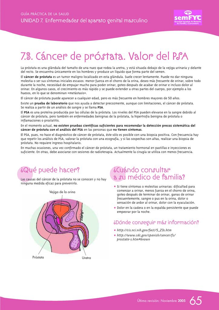 descripción del dolor de espalda del cáncer de próstata