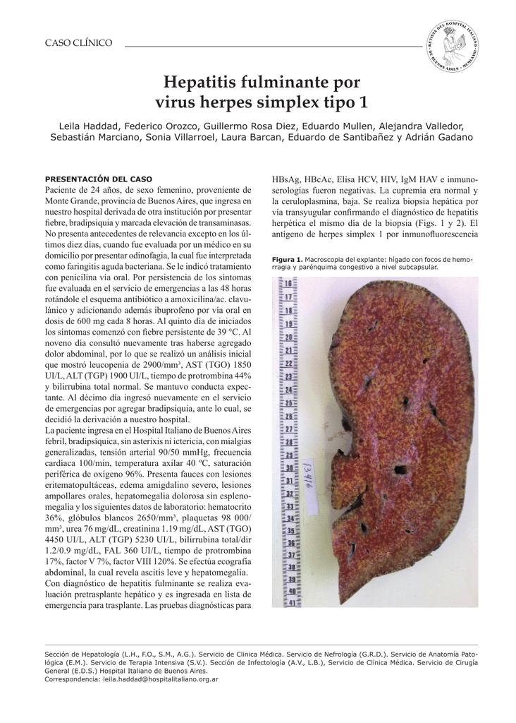 Hepatitis fulminante por virus herpes simplex tipo 1