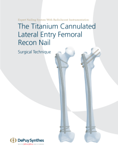lateral entry femoral nail surgical technique guide